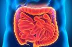 דיברטיקוליטיס: הכל על סעפת במעי הגס