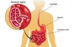 קרוהן: מחלת מעי דלקתית