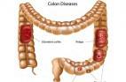 קוליטיס: דלקת כרונית במעי הגס