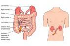 אי ספיקת כליות כרונית: מניעה וגורמי סיכון