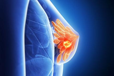 סרטן השד: מומלץ לעשות בדיקות שיגרתיות מפעם לפעם
